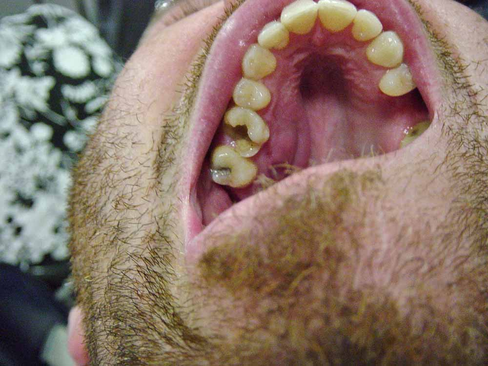Bad absessed tooth in Belize